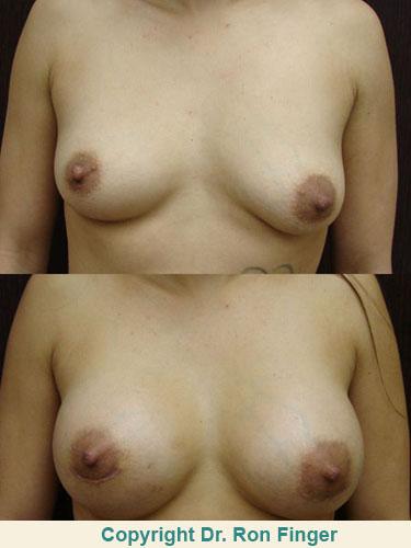 Breast Augmentation E. Ronald Finger