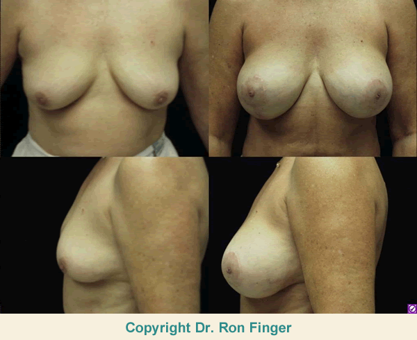 Before and After Auto-augmentation with Breast Lift