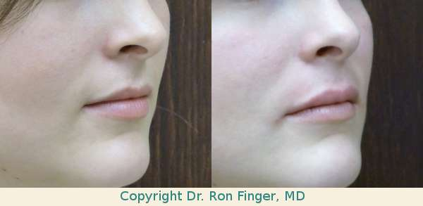 Juvederm Lip Injections Savannah