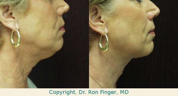 Liposuction and anterior resection of neck skin savannah