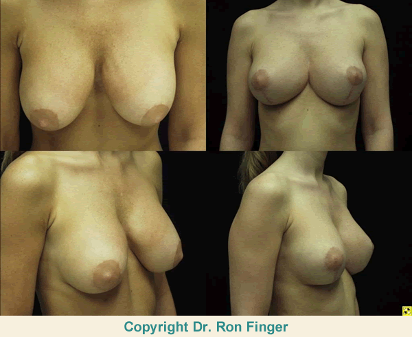 Breast Lift and Implant Replacement with Silicone Implants versus Saline Implants