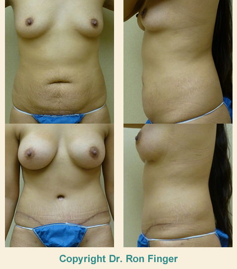 Mommy Makeover - Tummy Tuck and Breast Implants Before and After (4-months post-operative)