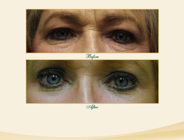 Brow & Eyelid Lift