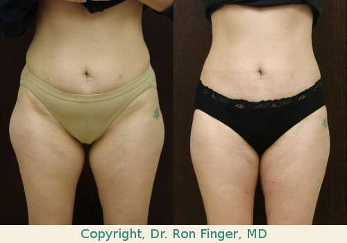 Liposuction thighs savannah liposuction abdomen.