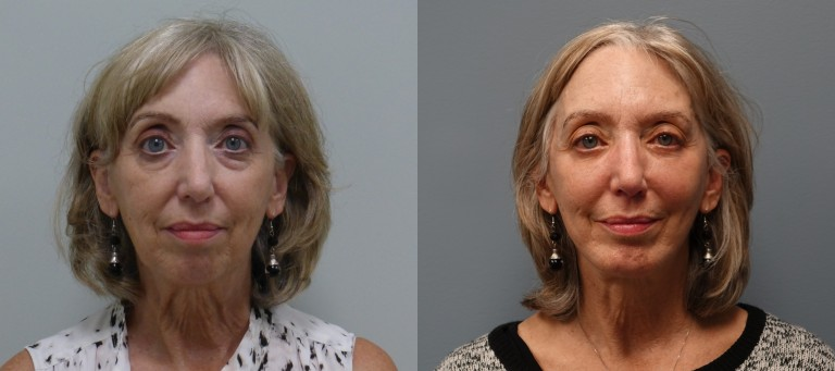 modified Facelift and Face procedures