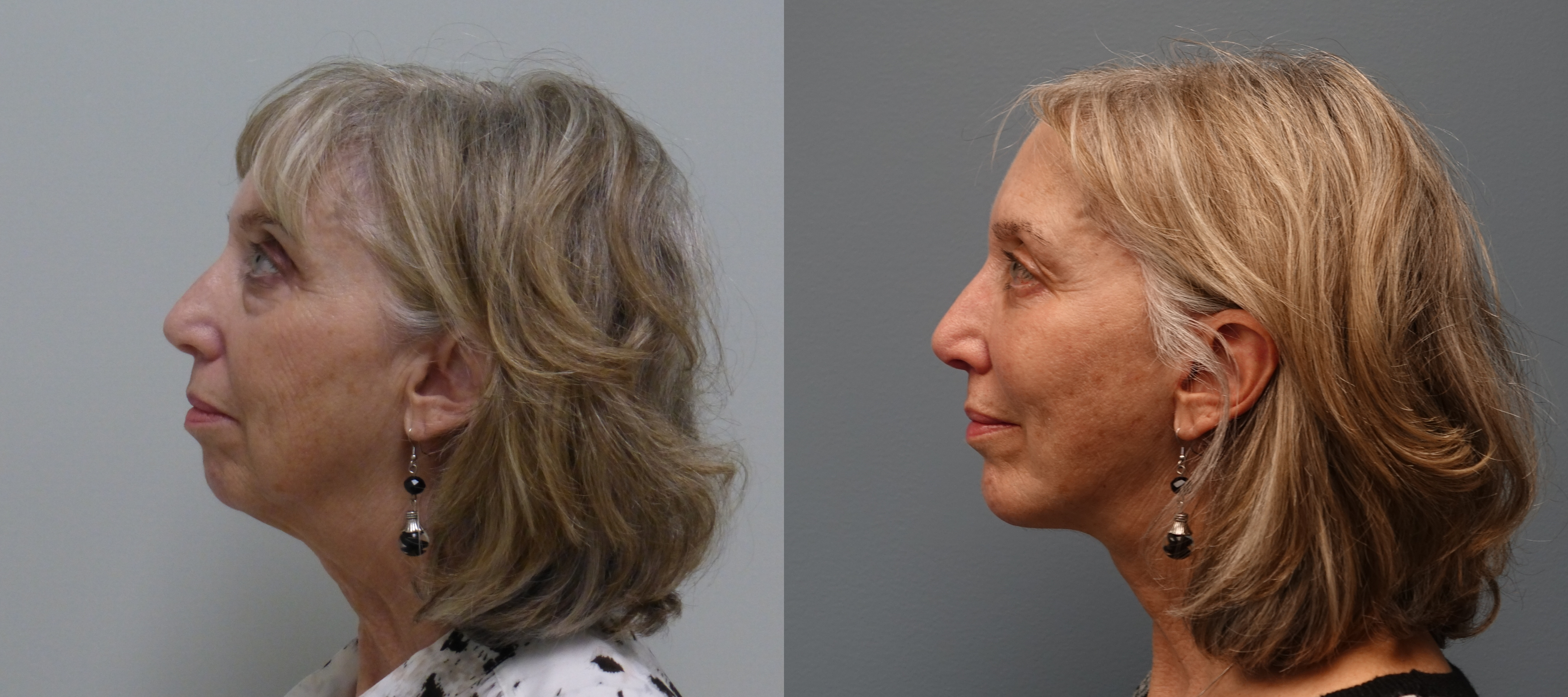 5 year old Before and 6 month After modified facelift, implant to chin and anterior cheek, lower lid blepharoplasty, and fat grafts to the face.