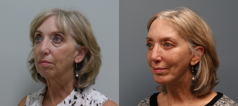 Plastic Surgery of the face - patient before and after