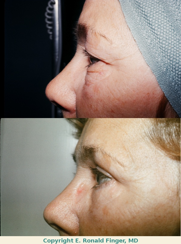 Before and one year after upper and lower eyelid lift (blepharoplasty)