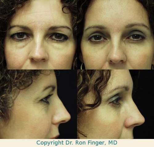 Upper and lower lid blepharoplasty