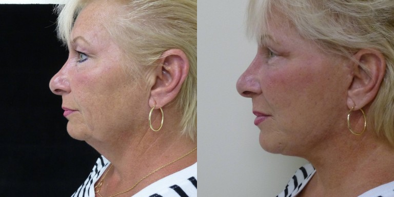 Before and After modified facelift , upper and lower eyelid lift, fat transfer to the face, and eyelids.
