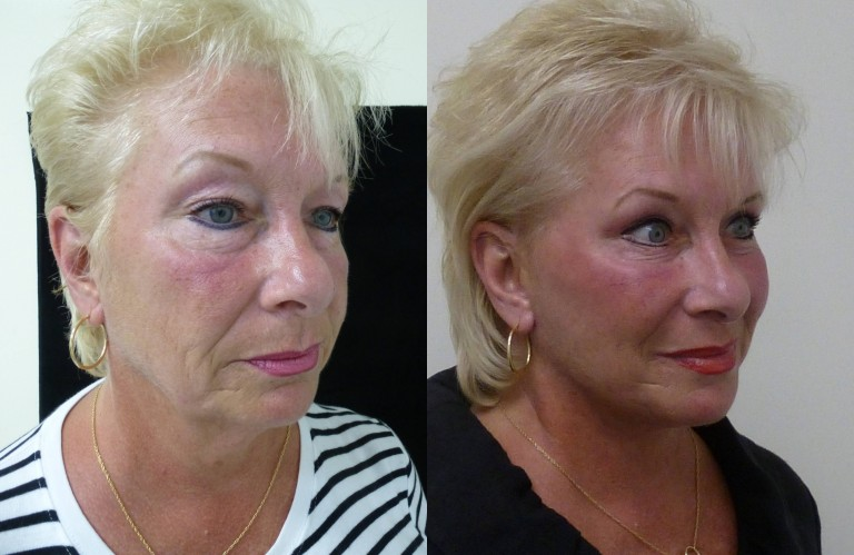 Before and After modified facelift, upper and lower eyelid lifts, and fat transfer to the face, and eyelids.