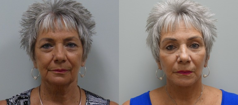 Before and after modified facelift with upper lid blepharoplasty, Transconjunctival lower lid blepharoplasty, and fat transfer to the face.