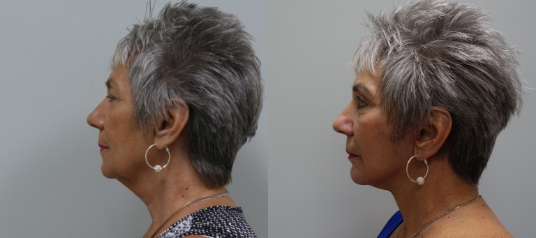 Before and after modified facelift with upper and lower lid blepharoplasty, and fat transfer to the face.