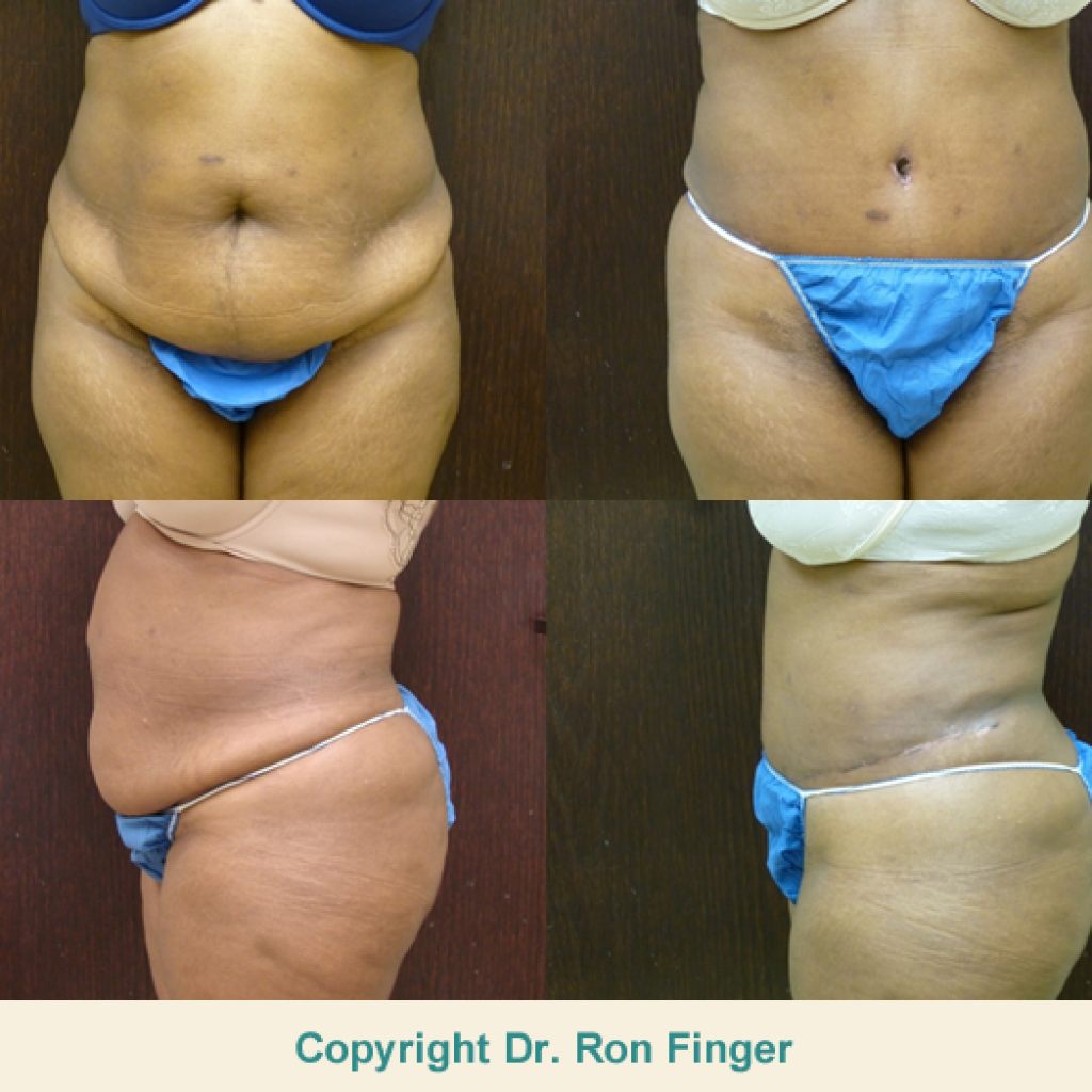 Before and After Drainless Tummy Tuck and Liposuction