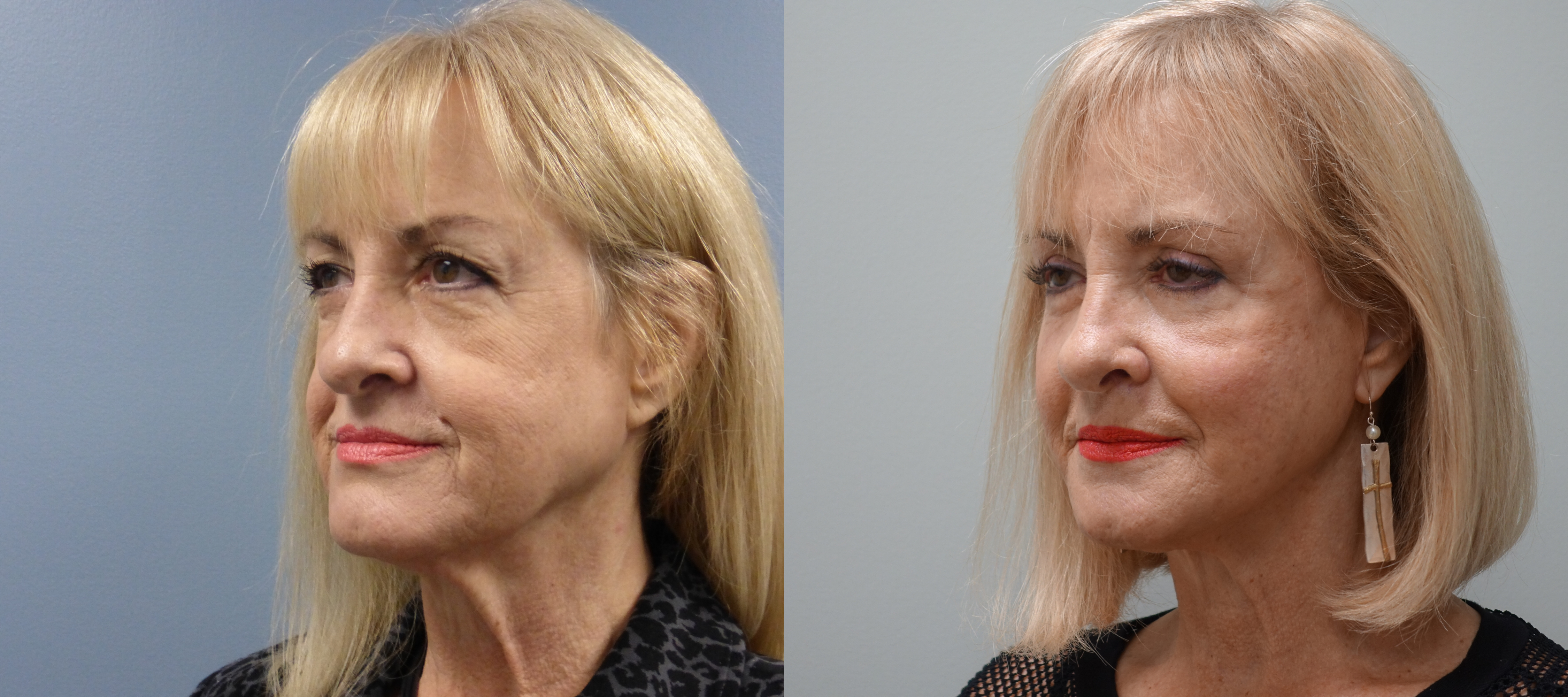 Before and After Facelift, eyelid lift and silicone implants on the bone under the lower lids.