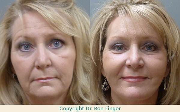 Before and After Facelift, Brow Lift and upper Eyelid lift.