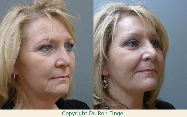 Before and After Modified Face lift, Brow Lift, and upper Eyelid lift.