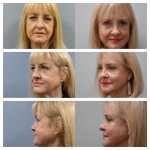 Before & After Full-Facelift, Silicone Implants on the Bone of Lower Eyelids & Upper Blepharoplasty