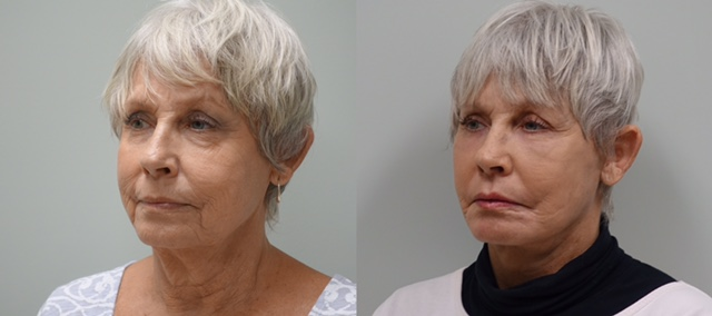 65 year old before and 6 weeks after a modified facelift, fat grafts to the face and CO2 laser of lower eyelids and around the mouth.
