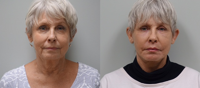 65 year old before and 6 weeks after modified Facelift, fat grafts to the face and CO2 laser of lower eyelids and around the mouth.