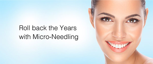 micro needling and Platelet Rich Plasma Therapy