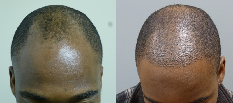 African American Hair Restoration
