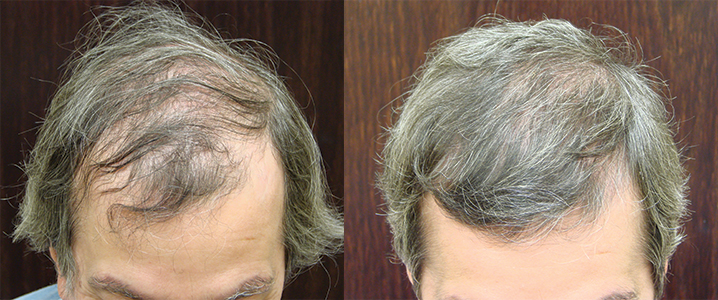Savannah NeoGraft Hair Transplant