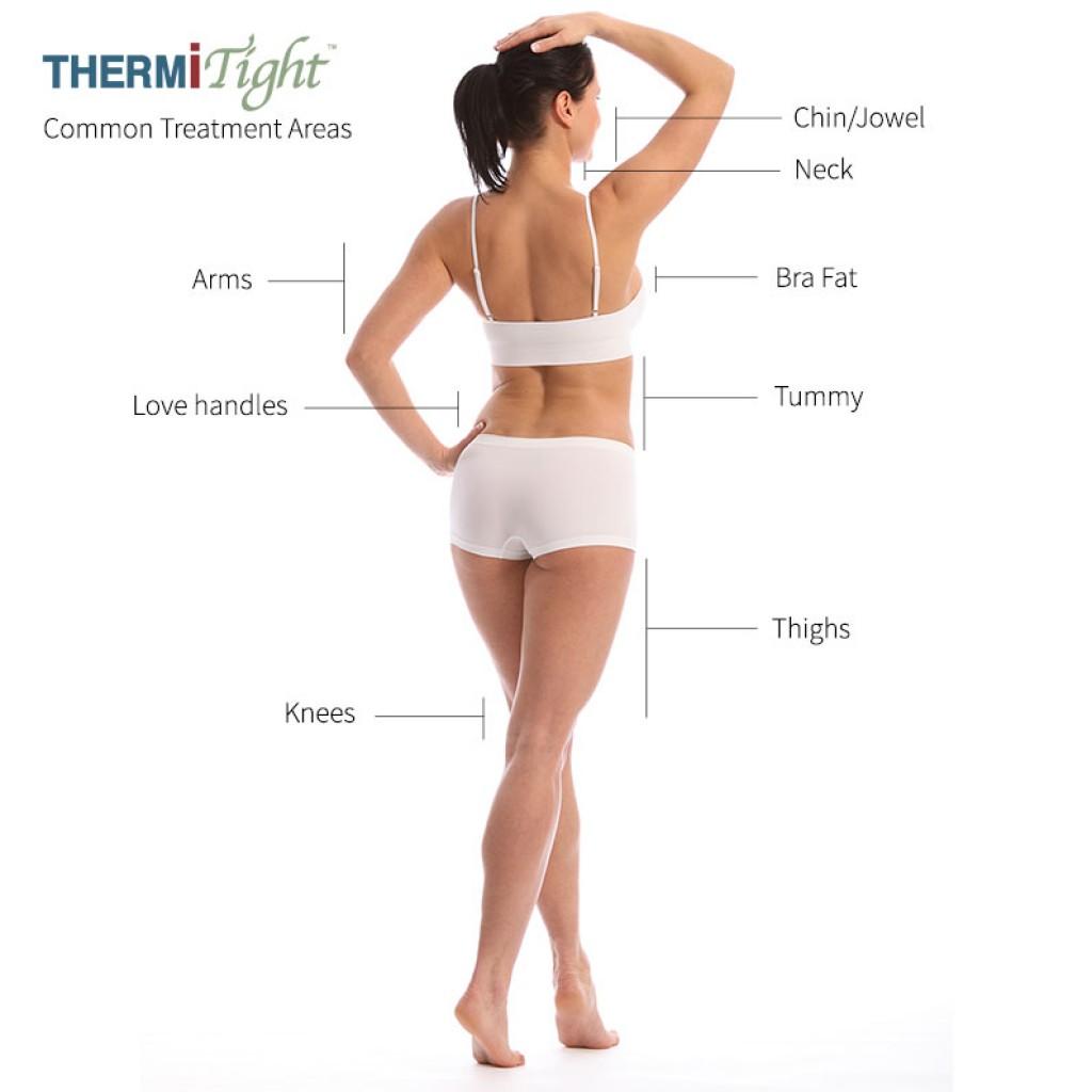 Thermi Treatments