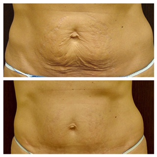 Before and after loose skin removal of the abdomen