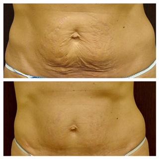 Skin Removal - Mini Tummy Tuck -