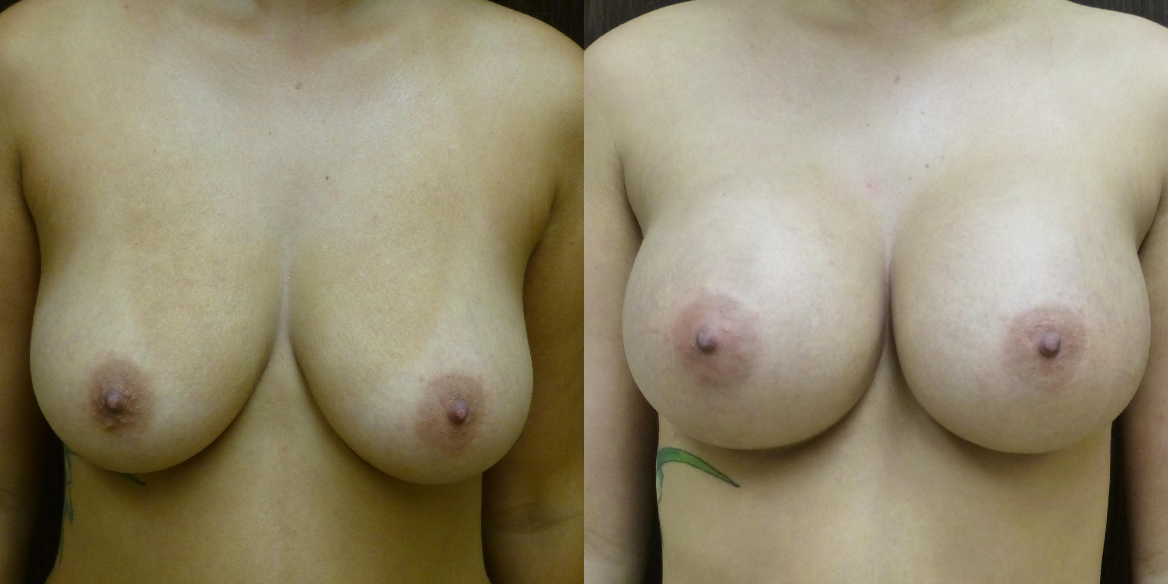 Breast Augmentation - Before and after - Many patients have Fear of Plastic Surgery includes Breast Augmentation Surgery