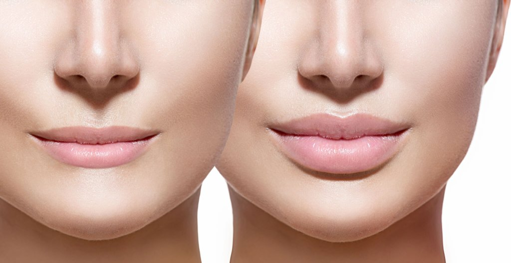 Fuller Lips with the help of fillers can be beautiful and attractive.