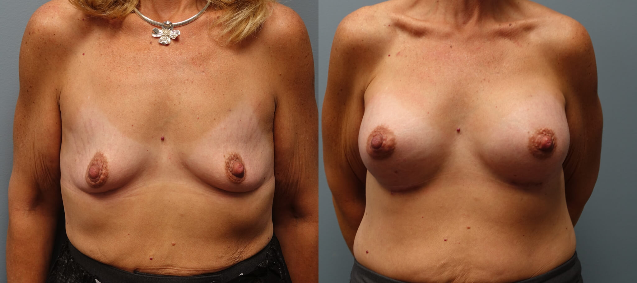Breast Augmentation 48 year old 400High profile, gel, submuscular before and 1 month after