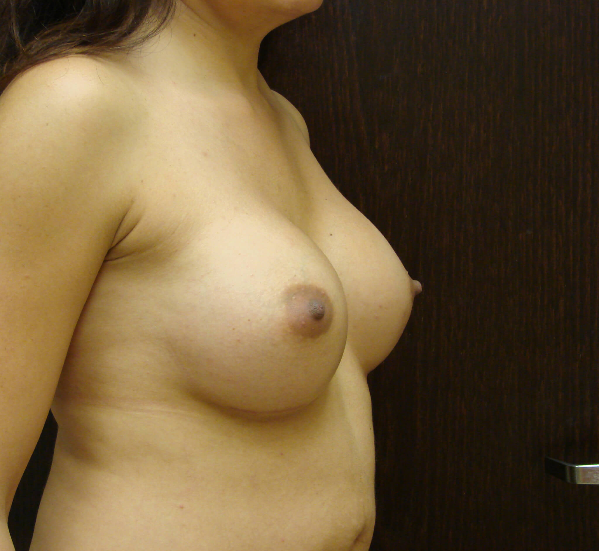 Breast Augmentation Patient had 325CC saline implants replaced with 570CC silicone implants