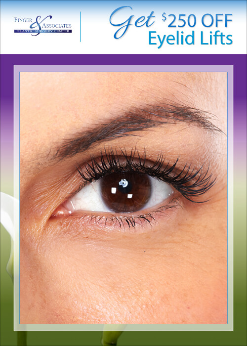 May & June Specials Eyelid Lifts
