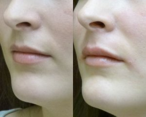 Soft Tissue Filler to the upper lip only .2cc Juvederm to the side
