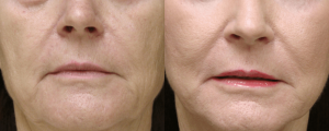 Fraxel Skin Resurfacing Before and Three months after