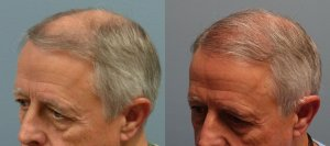 Neograft, 65 year old 2,010 grafts to frontal scalp before and 7 months after