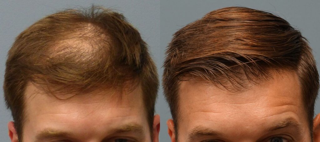 Neograft 34 year old 1,502 Grafts Before and 5 Months post-op