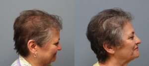 Hair Transplant with strip excision 1,325 Grafts Before and 11 months after