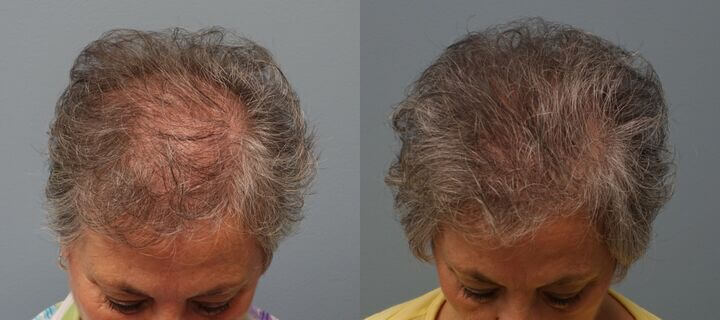 Hair Transplant with strip excision 69 year old 1,325 Grafts Before and 11 months after