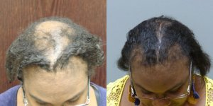 This patient had 2 Transplants and a Scalp Reduction, graft total 4,050 grafts Before and 1 year post-op
