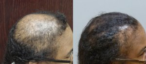 Hair Transplant with strip excision 54 year old This patient had 2 sessions, the final total was 4,050 grafts Before and 1 year post-op