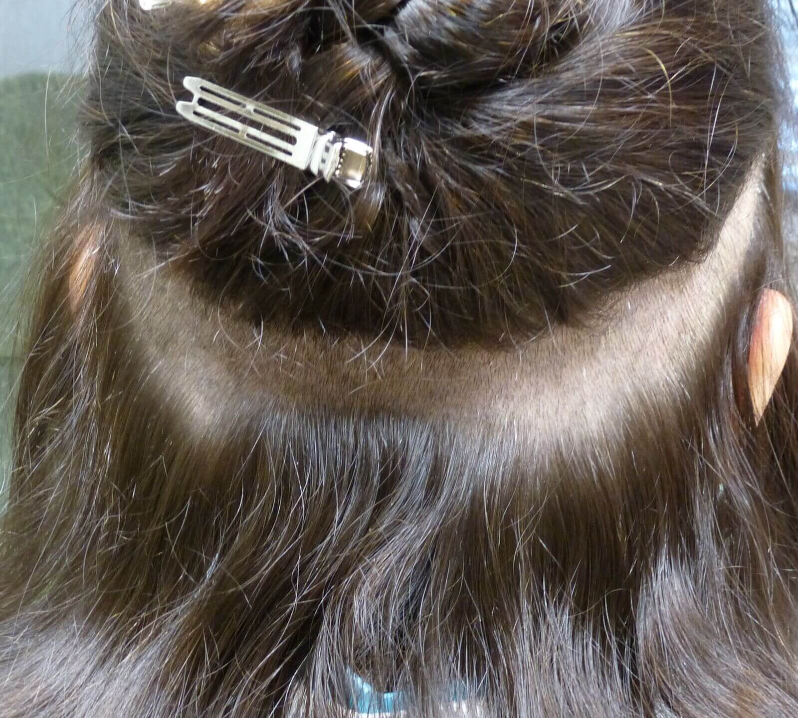 This is an example of a strip excision that is done for patients with long hair. The area is excised and then the edges are sutured back together. This prevents having to shave a large donor site.