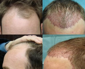 Neograft hair transplant This picture show the patient before the procedure and then immediately after. He had 1,000 Grafts to the frontal hairline.