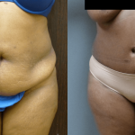 Rapid Recovery Abdominoplasty with liposuction of sides before and 1 year after