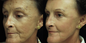 Laser Skin Resurfacing 60 years old Before and two months after