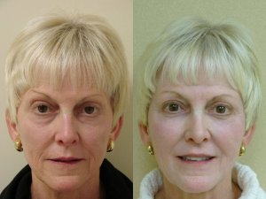 58 year old before and after 3cc Restylane for Lips, Lower Lids, cheeks .
