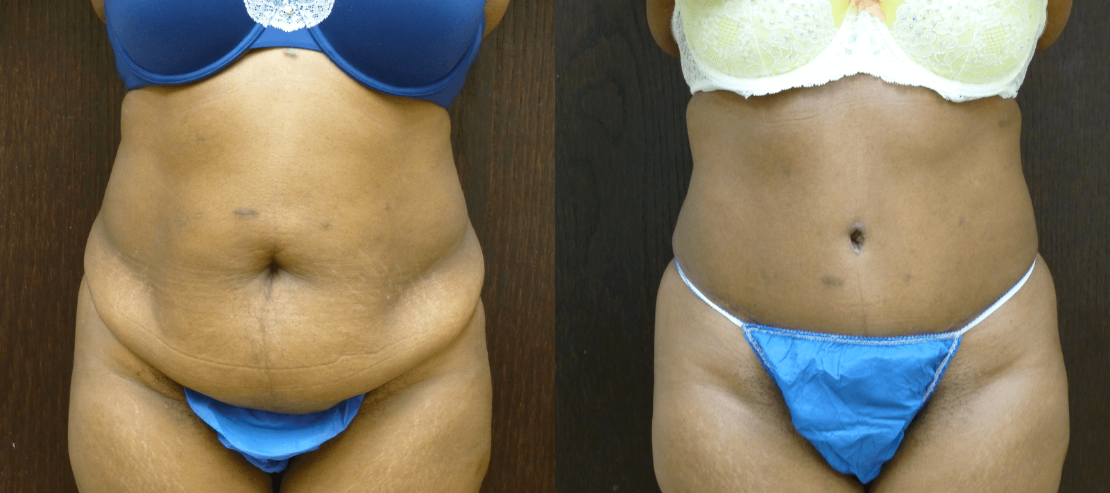 57 year old Abdominoplasty with liposuction of the sides Before and 2 months post-operative. Dr. Finger specializes in the Tummy Tuck procedure without drains.