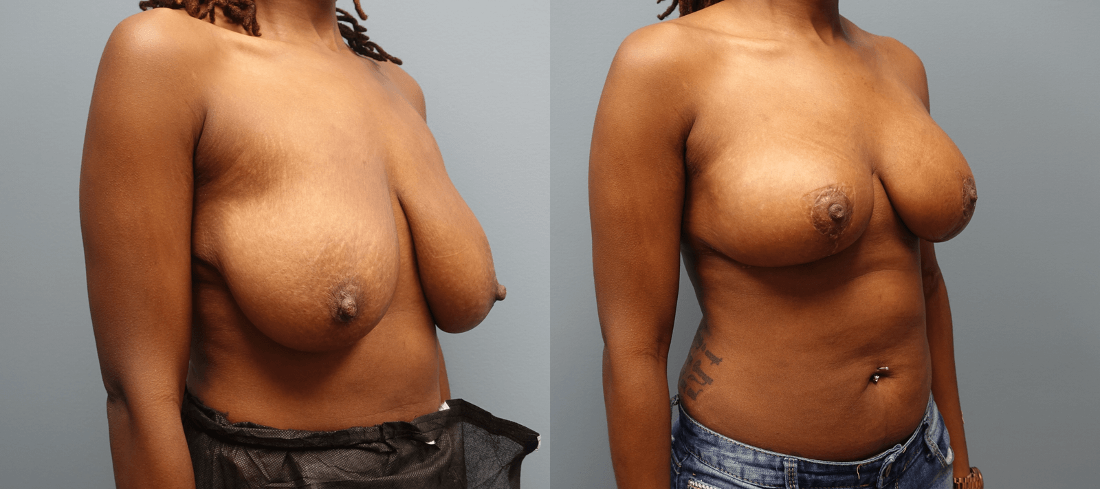 Before and after Auto Augmentation 32 year old 2 1/2 yrs after the procedure. Breast Augmentation
